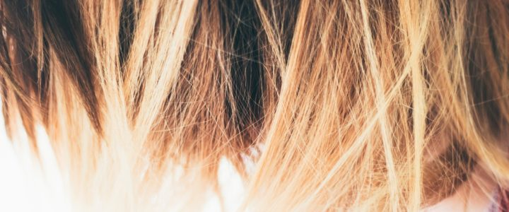 10 consejos a tener en cuenta si sufres alopecia
