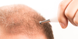 Alopecias sevilla